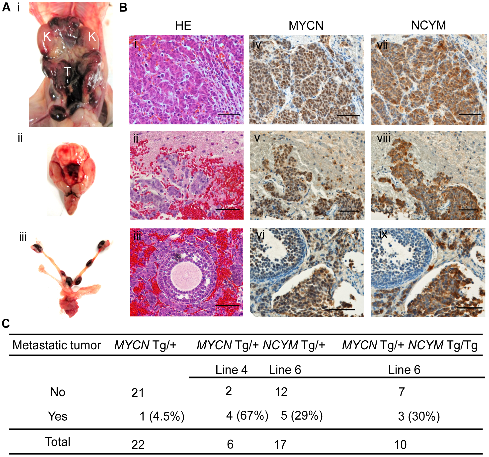 NCYM promotes metastasis in mouse transgenic models of neuroblastoma.