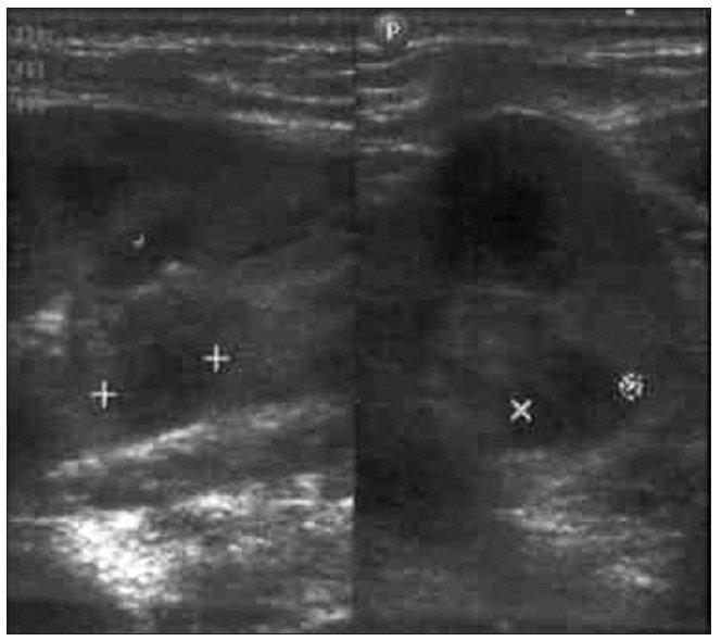 USG vyšetrenie pri prijatí: obraz početných hypoechogénnych ložísk bilaterálne. Fig. 1. USG examination upon admission: a picture of numerous bilateral hypoechogenic foci.