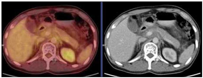 """PET-CT vyšetření s podáním i.v. kontrastu provedené v září roku 2010. Mediastinem, jaterním hilem a kaudálněji celým retroperitonálním prostorem se spolu s cévami pruhovitě táhne """"cárovitě"""" hypodenzní (hemagiomatózní) infiltrát, jehož metabolická aktivita je srovnatelná s pozadím. Lze tedy říct, že ani kostní postižení, ani infiltrát v mediastinu, retroperitoneu nevykazoval patologickou míru konzumpce FDG, kterou běžně vídáme u většiny ložisek maligní etiologie."""