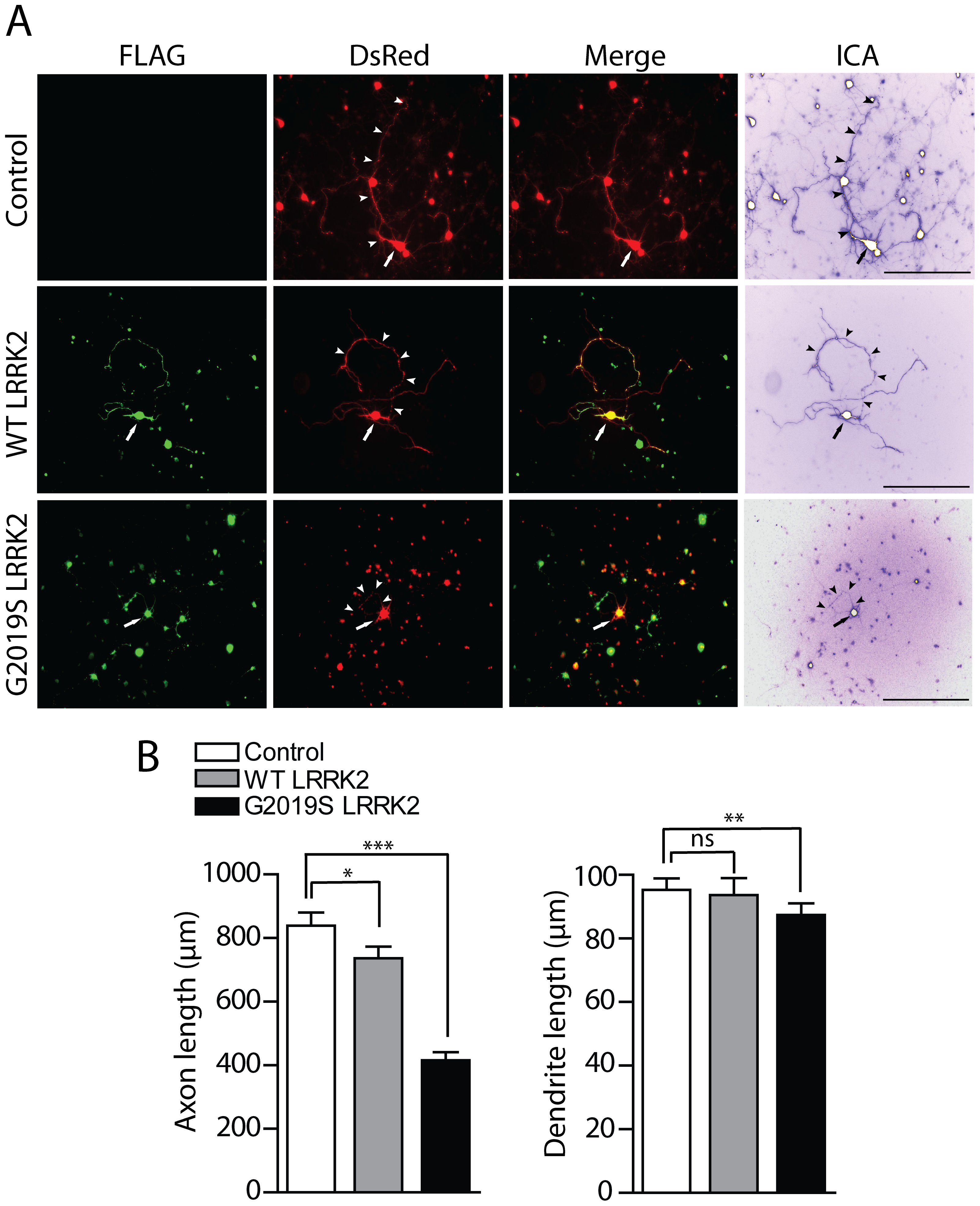 Effects of LRRK2 expression on neurite length of cortical neurons.