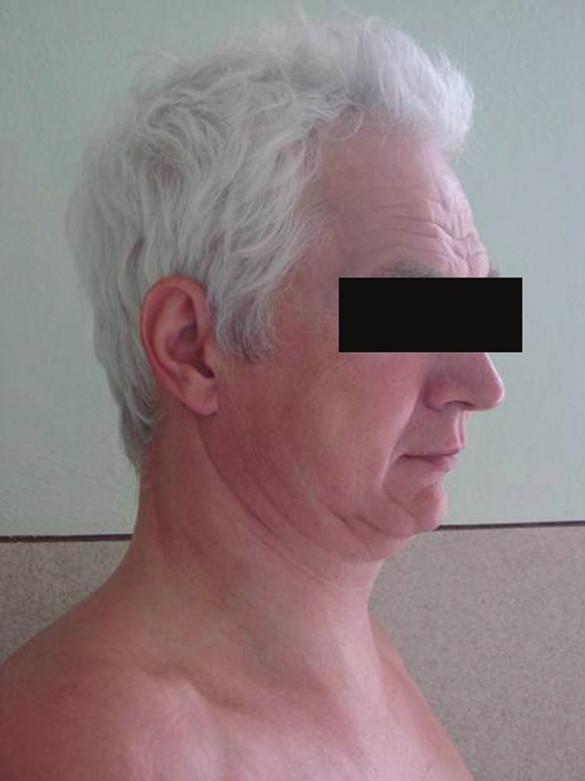 Pacient s podkožním emfysémem hrudníku a krku Fig. 2. The patient with subcutaneous emphysema of the neck a thorax