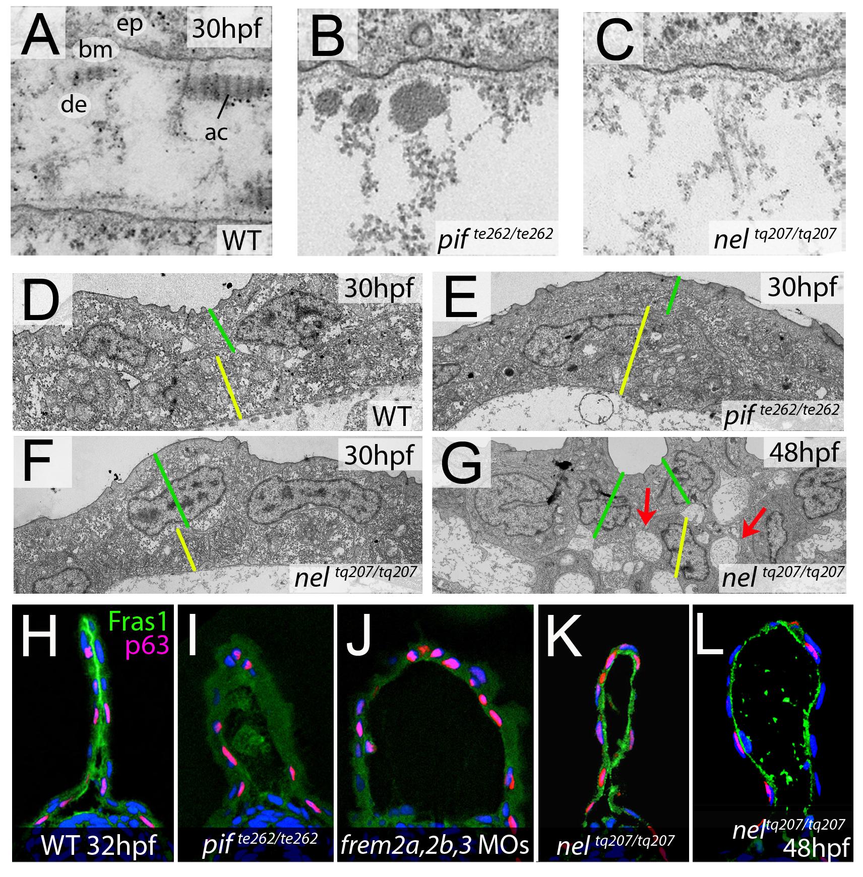 <i>fras1</i> and <i>hmcn1</i> mutants display blister formation at identical sites below the basement membrane; however, in contrast to Frem2/3 proteins, Hmcn1 is dispensable for Fras1 stabilisation.