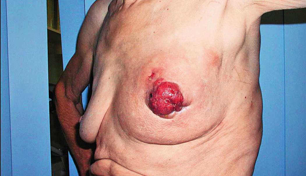 Pagetův karcinom