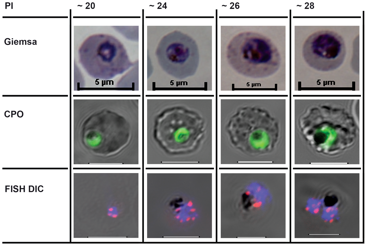The cell biological context of <i>P. falciparum</i> intraerythrocytic (IE) mitotic recombination.