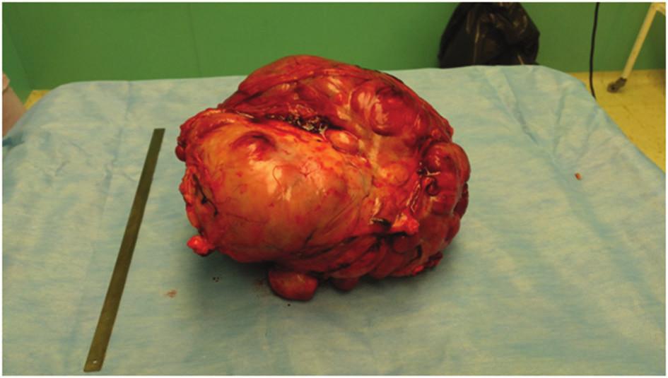Extirpovaný tumor Fig. 6: Resected tumor