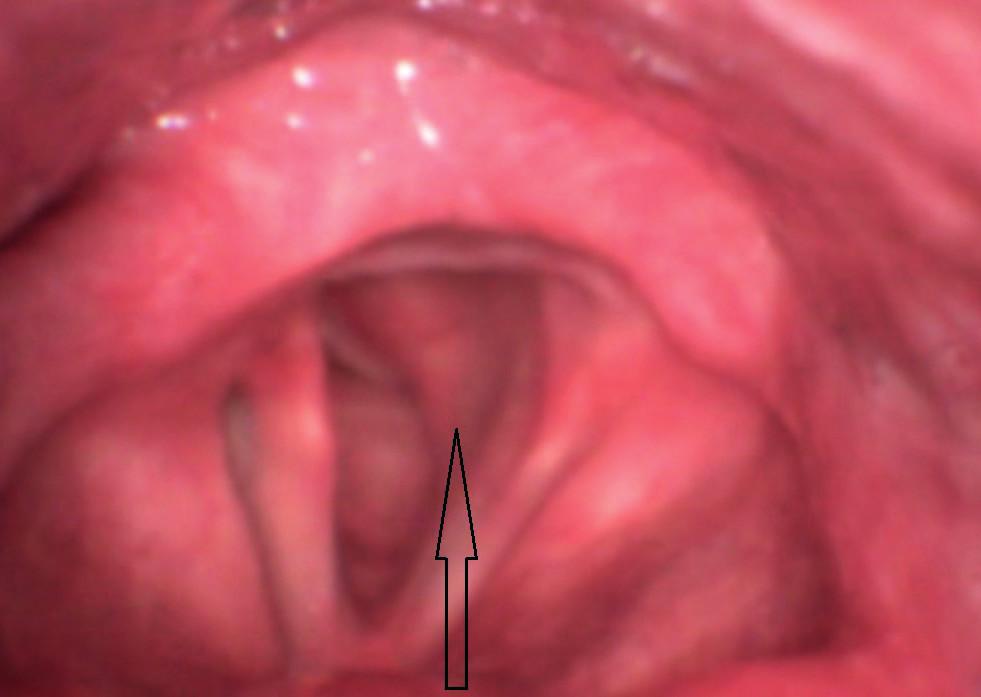 Předoperační flexibilní endoskopie – hladké růžové vyklenutí pod levou hlasivkou zasahující nejméně do poloviny lumina hrtanu.
