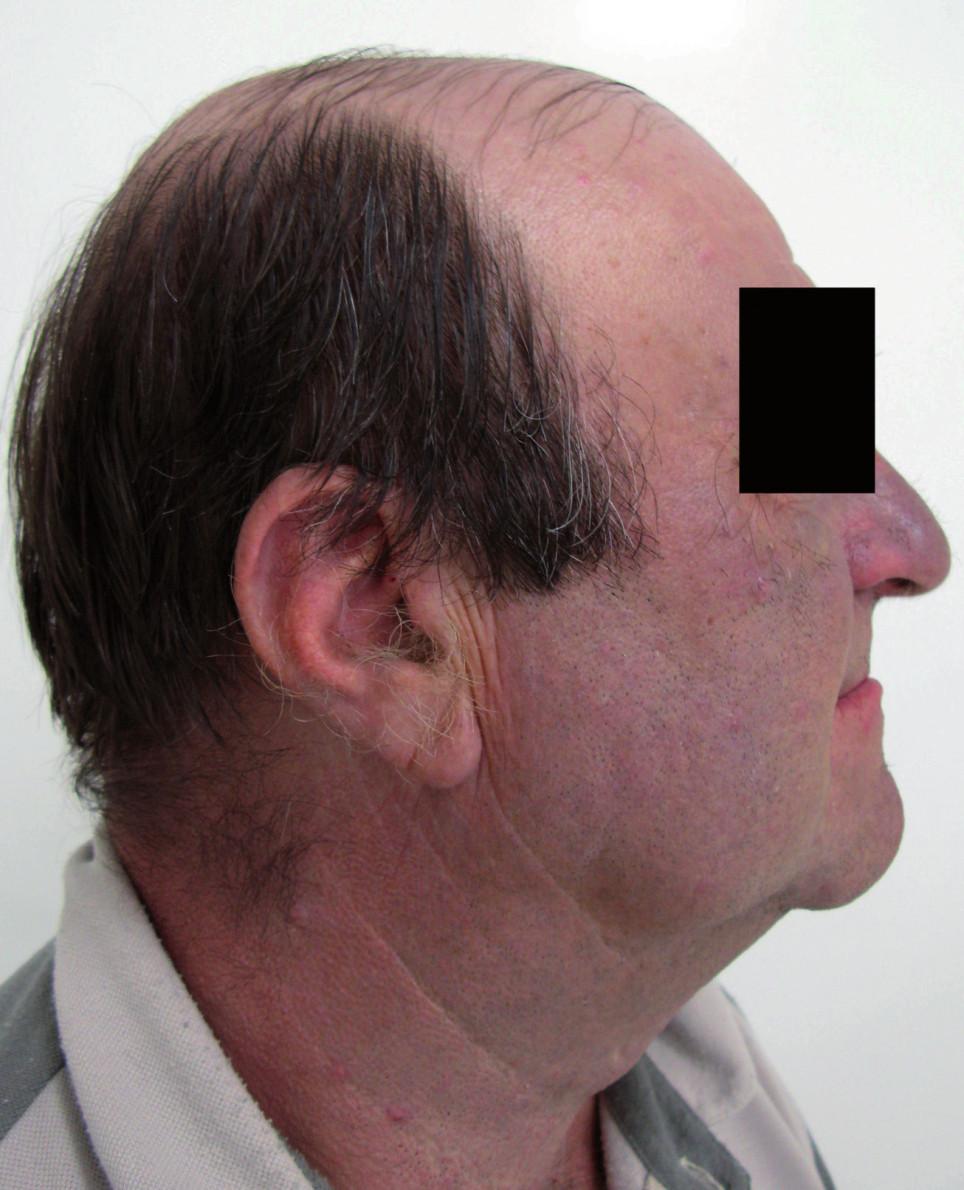 Pacient č. 2 – profil.