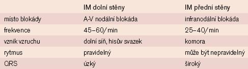 EKG známky AVB III. st. u IM dolní stěny a přední stěny [5].