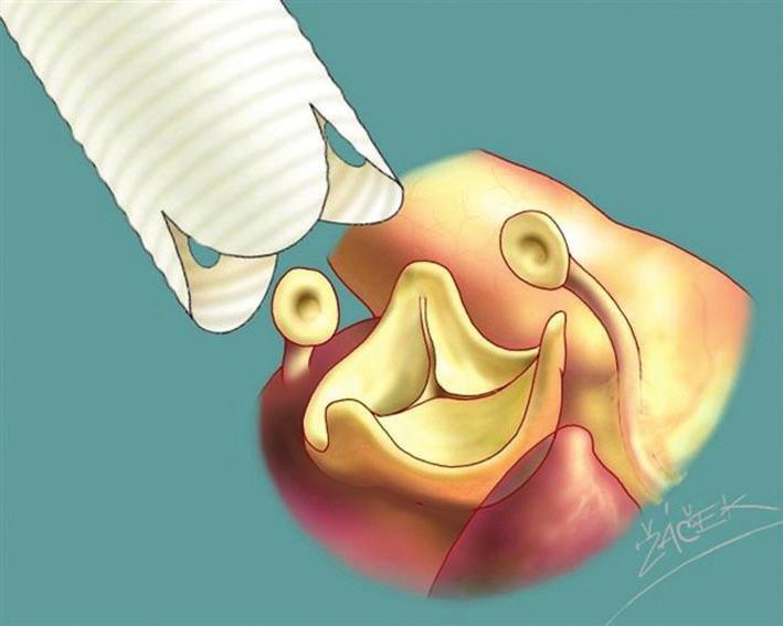 Schéma remodelace aortálního kořene podle Yacouba.