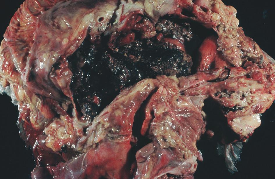 FAP – sekční nález, rozpad pankreatu – anamnéza 6 hodin Fig. 1. FAP – section finding, destruction of the pancreas – a 6-hour history (FAP = Fulminant acute pancreatitis)