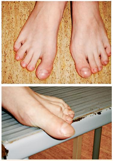 Obr. 5, 6. Paličkové prsty nohou. Fig. 5, 6. Clubbing of the toes.