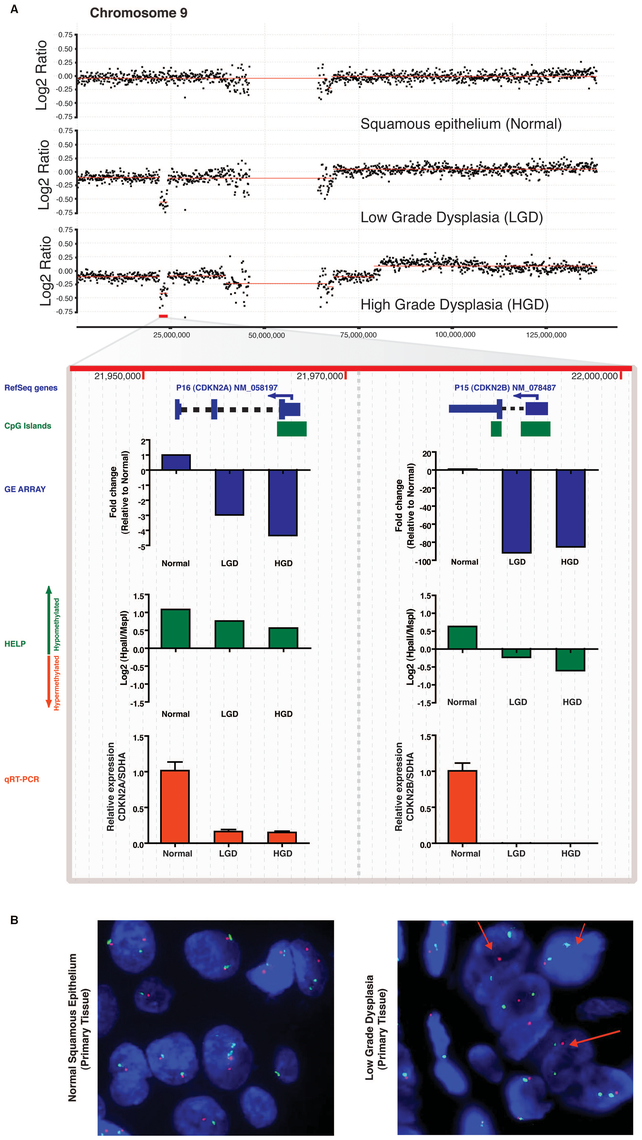 Differential inactivation of the <i>CDKN2A/CDKN2B</i> locus by combination of genomic and epigenetic mechanisms.