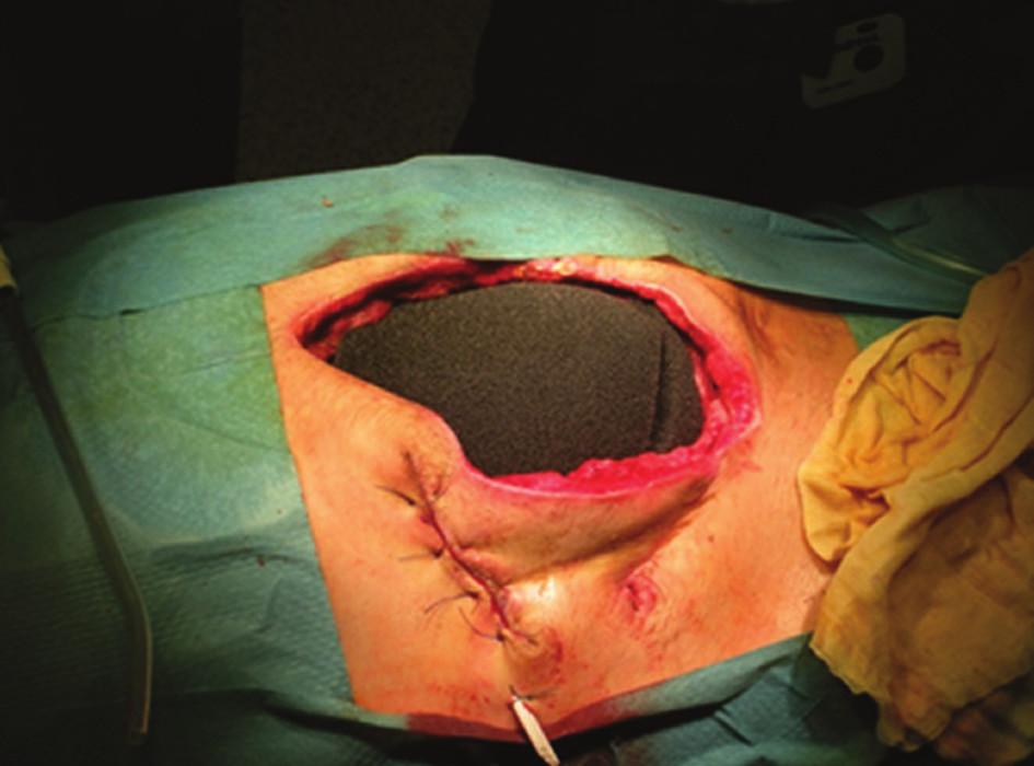 Vnitřní vrstva laparostomie Fig. 2: The inner layer of TNP laparostomy