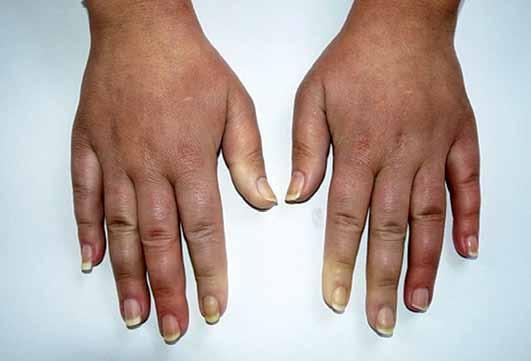 Raynaudův fenomén, difuzní prosáknutí prstů.