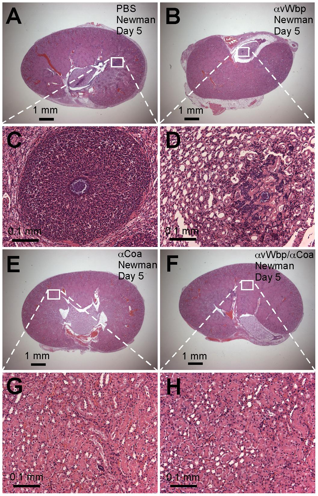 Passive transfer of coagulase antibodies confers protection against <i>S. aureus</i> abscess formation.
