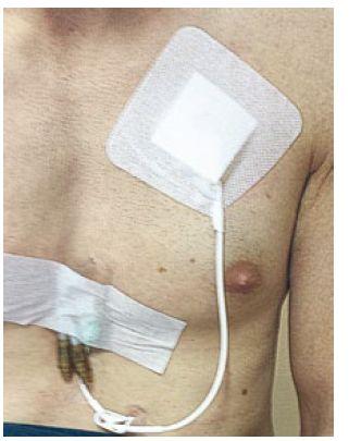 Implantovaný Hickmanov katéter. Fig. 2. Hickman catheter implanted.
