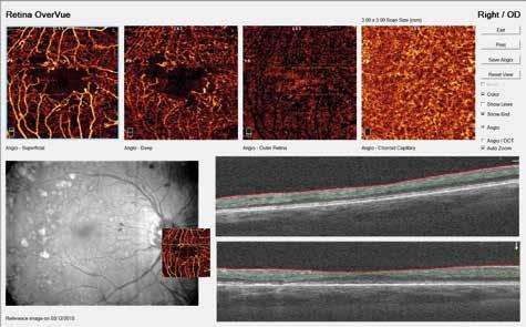 Obr. 6b. NPDR s patologickým rozšírením fyziologickej avaskulárnej zóny, preriednutím kapilár, intraretinálnymi mikrovaskulárnymi abnormalitami, mikroaneuryzmami a nonperfúznymi zónami v softwérom prifarbenom zobrazení