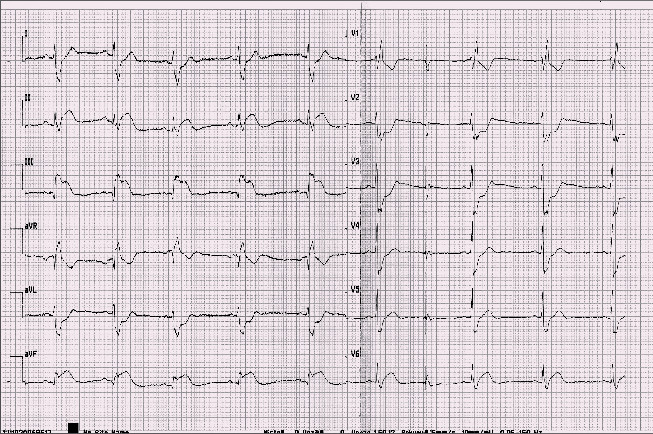Záznam EKG s obrazem elevací ST segmentu v inferolaterální oblasti a kontralaterálních depresí ST segmentu.