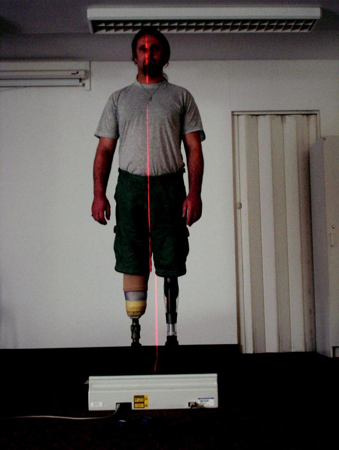 Pacient po amputaci PDK ve stehně a LDK v bérci – vyšetření pomocí L.A.S.A.R. Posture.