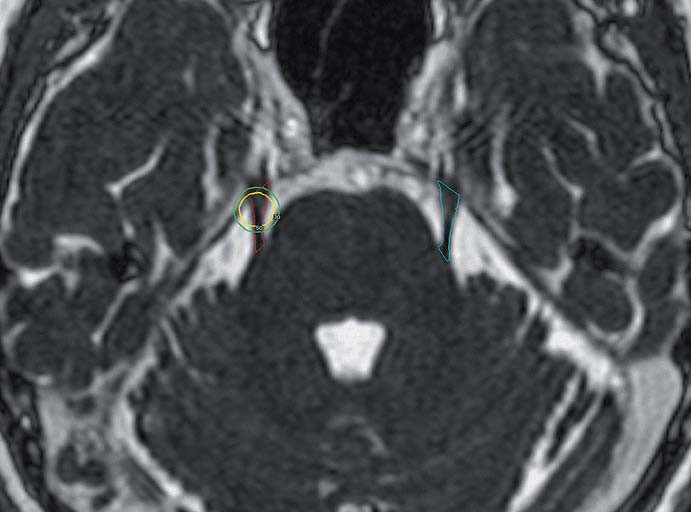 Fig. 1. 3D-CISS MR image used for volumetric evaluation. ROIs placed on the bilateral trigeminal nerves, circles placed on the side of neuralgia represent planned 50% and 30% isodoses delivered by gamma knife irradiation. CISS – constructive interference in steady state, ROI – region of interest.