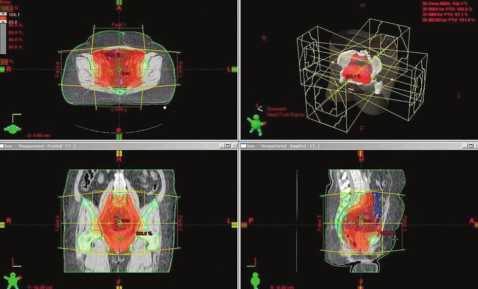 Radioterapie pánve 3D-konformní BOX technikou