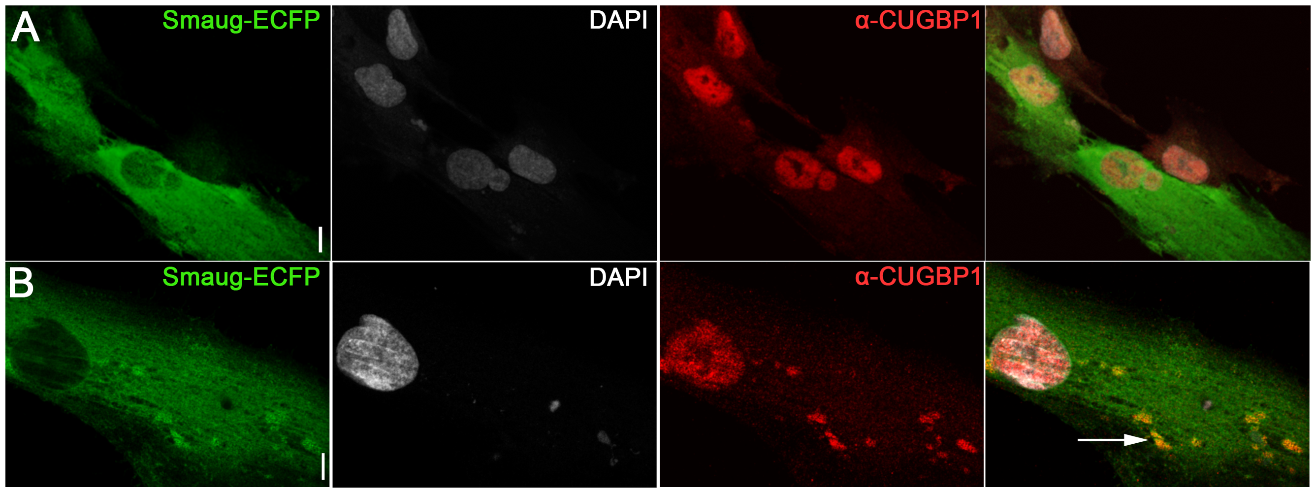 Expression of SMAUG1 in control human myoblasts does not affect CUGBP1 nuclear localization.