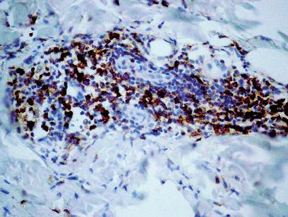 Mnohopočetné disperznejšie lokalizované CD3+ T-lymfocyty v zápalovom infiltráte. CD3+, 150x.