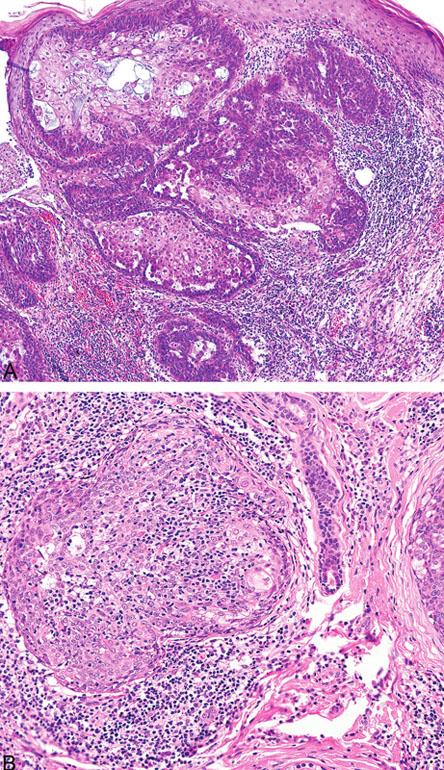 Peritumorální lymfocytární infiltrace sebaceózního adenomu (A); intra- a peritumorální lymfocytární infiltrace sebaceomu (B)