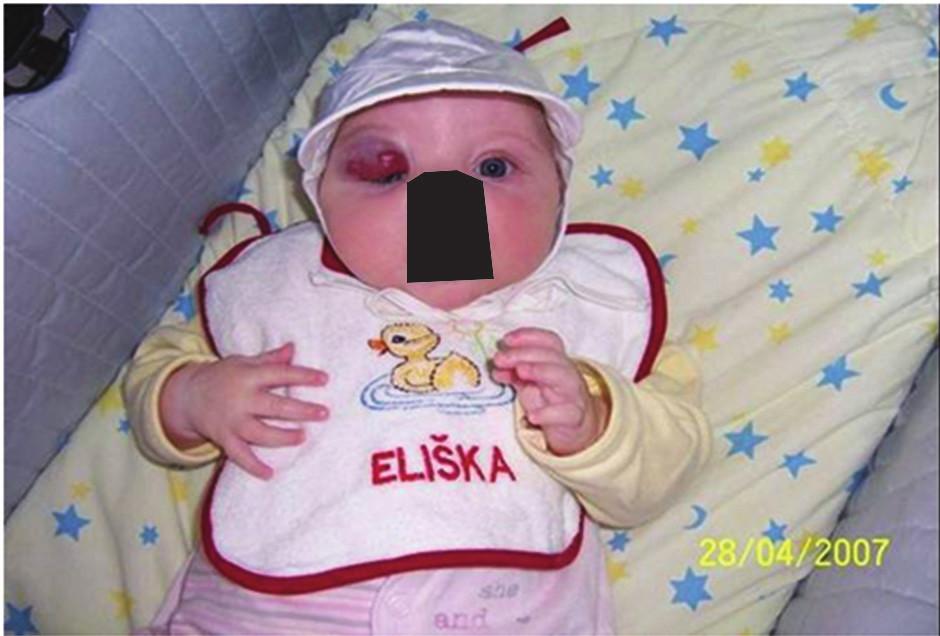 Superficiální hemangiom pravého horního víčka u dvouměsíčního kojence před terapií