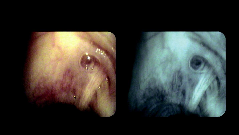 Rozšířená hlenová podslizniční žláza u nemocného s CHOPN (stabilní fáze) – obraz v bílém světle a pomocí autofluorescenčního modu bronchoskopu (archiv autorů)