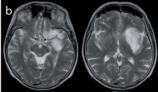 Obr. 1b) Předoperační snímek T2W (infiltrace frontobazálních struktur, nicméně dominantní masa tumoru v inzule).