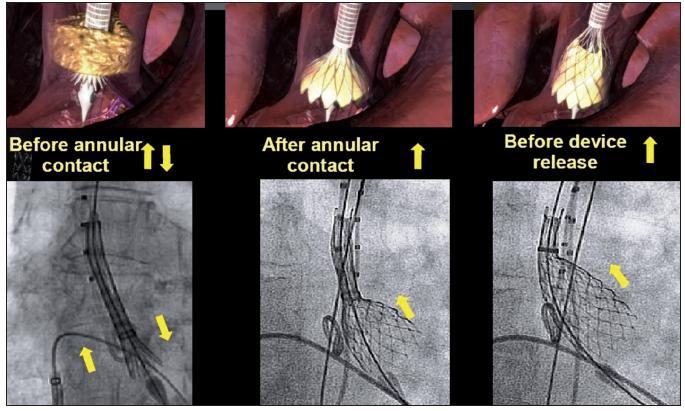 Schéma postupného uvolňování chlopně ze zaváděcího pouzdra do aortální pozice