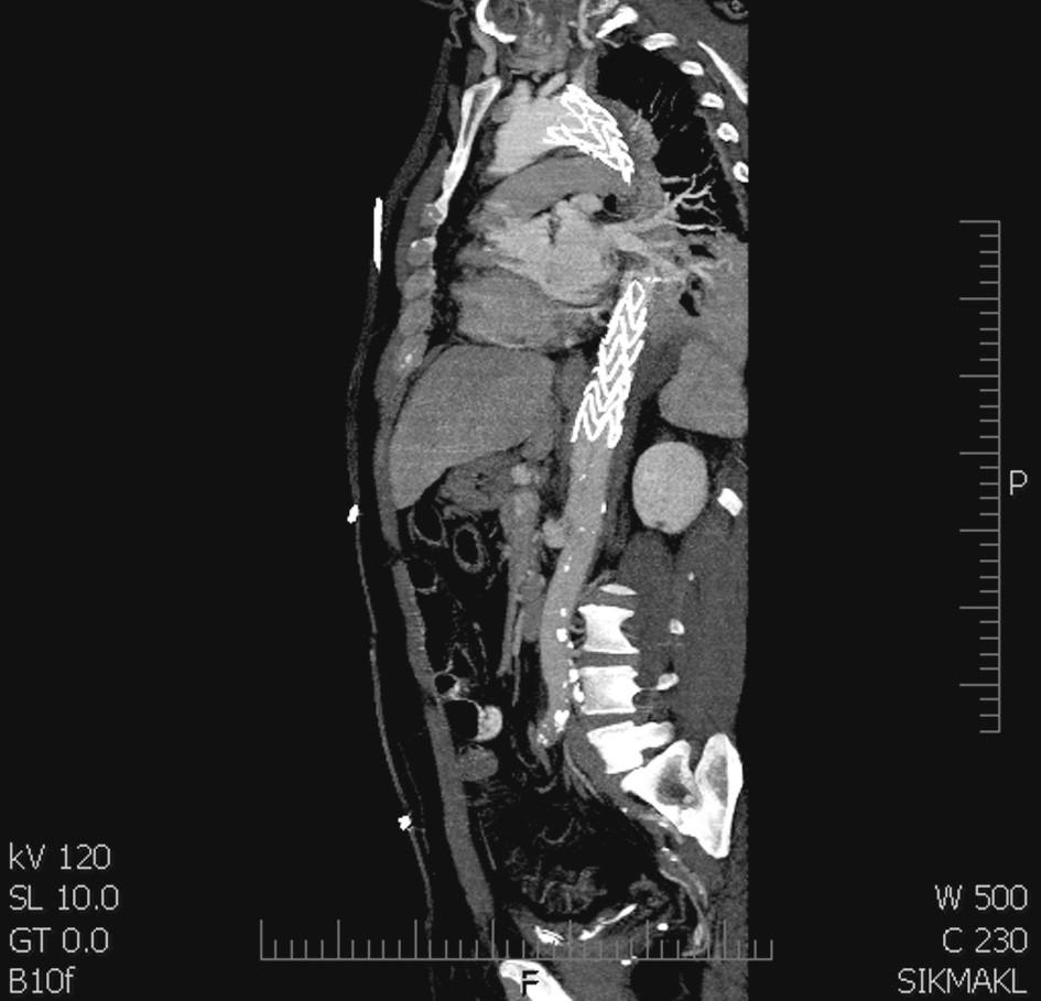 Stentgraft hrdlem překrývá levou a. subclavii a končí nad viscerálním segmentem Fig. 3. A stentgraft covering the left subclavian artery and ending cranial to  the visceral segment