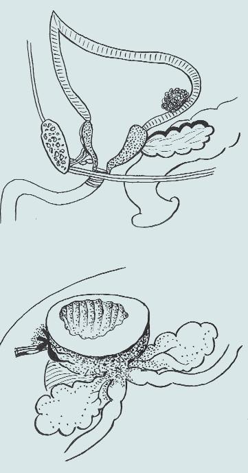 Stav po předoperační TURP – nahoře před a dole po prostatickou kapsulu šetřící radikální cystektomii [27].