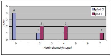 Srovnání předoperačních a pooperačních výsledků sluchové percepce podle Nottinghamské stupnice.