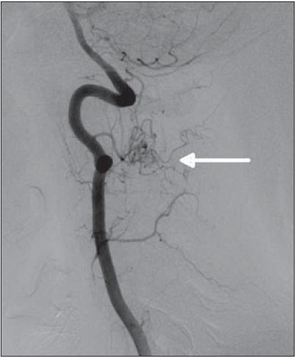 DSA vertebrálních tepen (a. vertebralis vlevo) – v úrovni C2 se nachází vinutá cévní struktura tvořící nepravidelné klubko velikostně kolem 1 cm. Hlavní zásobující tepnou mikrofistuly uložené povrchově na dorzální straně míchy vlevo je levá arteria spinalis posterior.