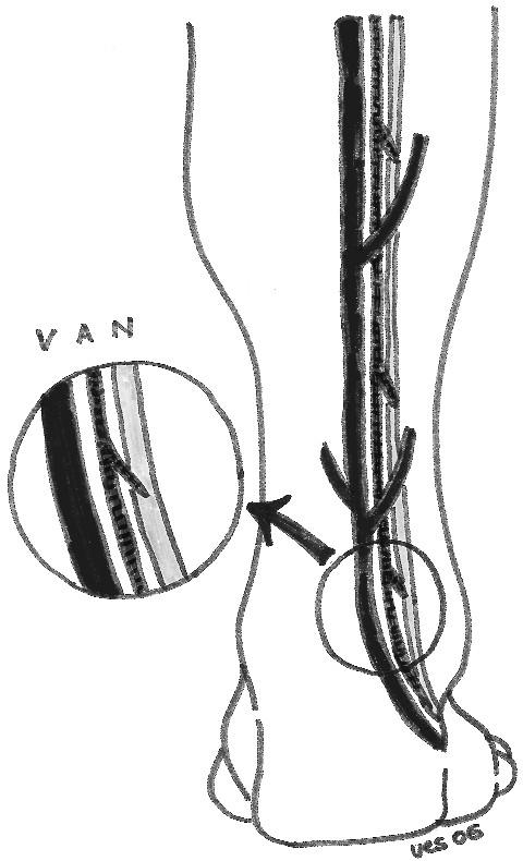 Nákres 2: Obrázek ukazuje anatomické uspořádání vena saphena parva, arteria suralis superficialis a nervus suralis. Nerv je uložen na laterální straně Scheme 2. The picture depicts anatomy of the v.saphena parva, arteria suralis superficialis and nervus suralis. The nerve is located laterally