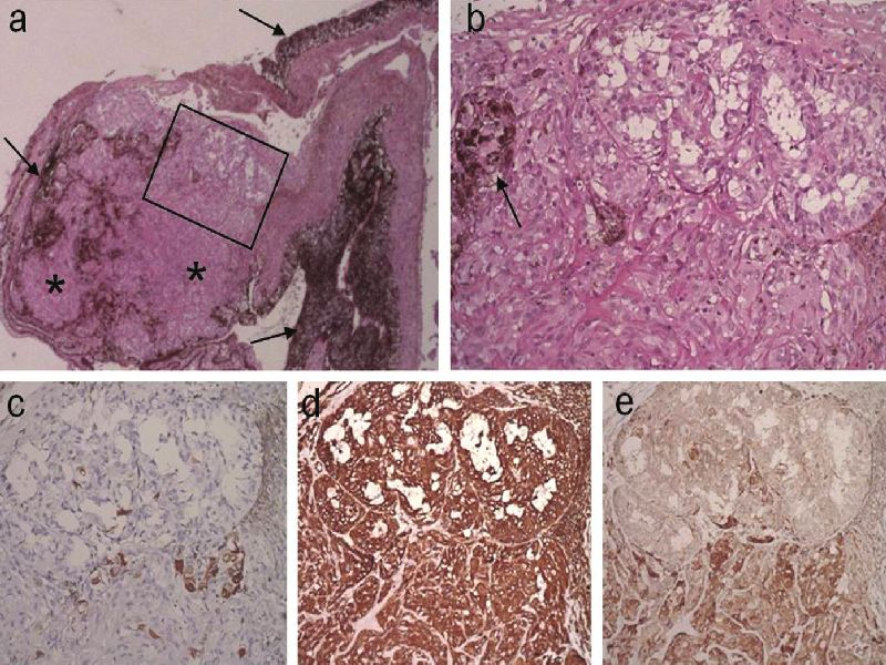 Adenóm nepigmentového epitelu ciliárneho telesa. a) Prehľadné zväčšenie ložiskovej proliferácie nepigmentového epitelu vzhľadu adenómu (*) ohraničené pigmentovým epitelom (→), detailne zachytenej v b) hematoxylín a eozín, 25x, 200x. Imunofenotyp nepigmentového epitelu je s negatívnou expresiou cytokeratínov c), pozitivitou vimentínu d) a rôznou mierou expresie vaskulárneho endotelového rastového faktora (VEGF) e); 200x