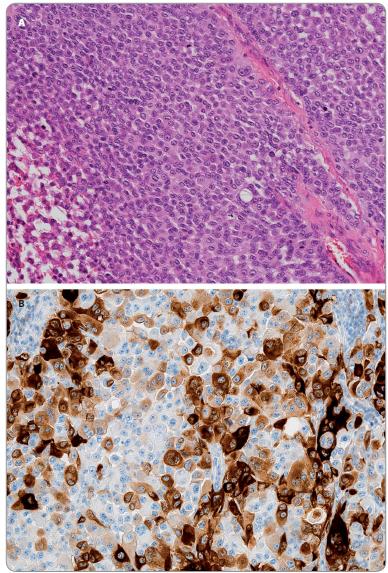 A. Morfologicky relativně homogenní populace epiteloidních elementů nodulárního melanomu. Je patrná vysoká mitotická aktivita v nádoru (hematoxylin-eosin; 100×). B. Tentýž nádor v imunohistochemickém průkazu S100 proteinu. Různý stupeň exprese (různá intenzita hnědé barvy) ukazuje na různý stupeň diferenciace nádorových buněk. Morfologická uniformita je tak pouze zdánlivá, nádorová populace je ve skutečnosti velice heterogenní (IHC S100 protein: DAB-hematoxylin; 200×).