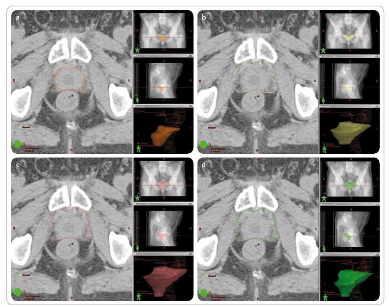 Zakreslení klinického cílového objemu u pacienta indikovaného k záchranné radioterapii pro bio chemický relaps. Původní stadium pT2cpN0M0, PSA před ozářením 0,2 ng/ ml. Vlevo pohled v rovině transverzální, vpravo rovina koronární, sagitální a prostorová rekonstrukce. Zakresleno rektum (hnědě) a ductus deferens vpravo a vlevo (červeně). U jednotlivých zakreslení uveden objem CTV a objem plánovacího cílového objemu, který by vznikl rozšířením CTV o symetrický lem 1 cm. a – dle doporučení EORTC (oranžově), CTV 39,94 ccm, PTV 167,67 ccm, b – dle doporučení RTOG (žlutě), CTV 91,05 ccm, PTV 304,12 ccm, c – dle doporučení kanadské skupiny (růžově), CTV 122,19 ccm, PTV 381,61 ccm, d – dle doporučení australské skupiny (zeleně), CTV 78,68 ccm, PTV 288,38 ccm.<br>