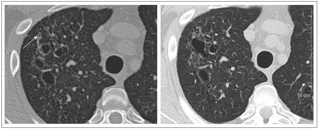 Pacient nar. 1963, HRCT ze dne 16. 3. 2009 a 25. 1. 2010. Silnostěnné cysty v horním laloku plicním, drobná nodulace.