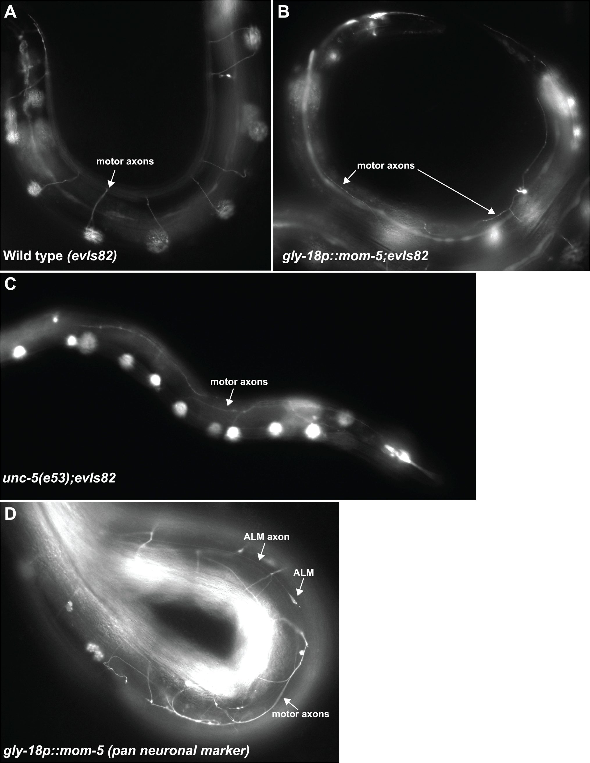 Expression of <i>mom-5</i> driven by the <i>gly-18</i> promoter induces <i>unc-5</i> null-like D/V axon guidance defects of the motor axons.