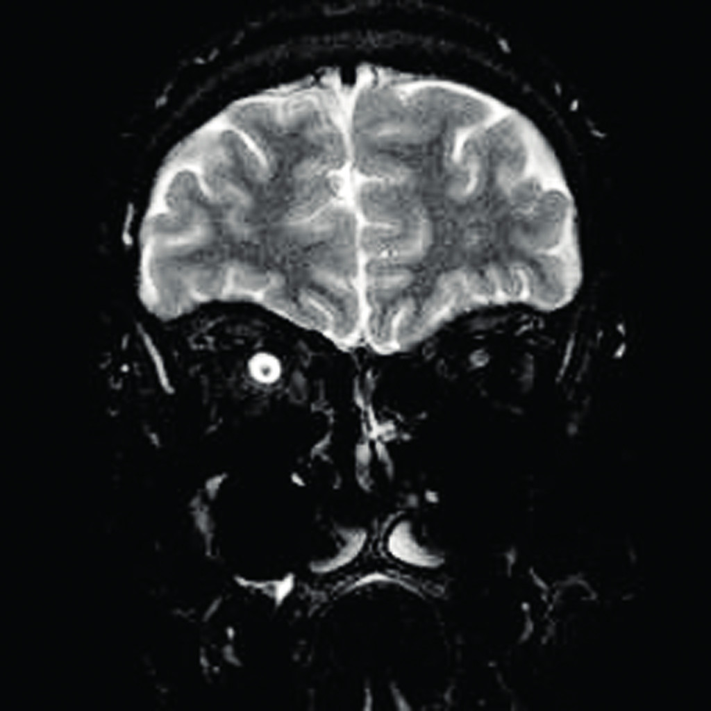 Obr. 3 a 4 CT vyšetření optického nervu.