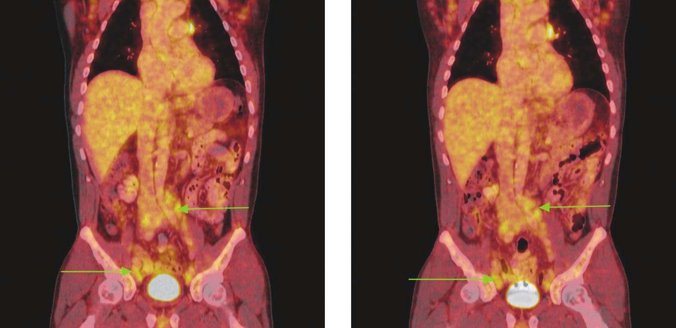 Série PET/CT snímků u nemocného s lymfomem z plášťových buněk před léčbou a po 2 cyklech léčby. Na prvním snímku jsou patrné zvětšené lymfatické uzliny vykazující hypermetabolismus glukózy v retroperitoneu a podél ilických tepen, nad tříselnými vazy a v tříslech. V některých lokalizacích lymfatické uzliny splývají až v pakety. Na druhém snímku přetrvávají zvětšené lymfatické uzliny a jejich pakety s hypermetabolismem glukózy v identických lokalizacích jako při předchozím vyšetření. Nedošlo rovněž ke zmenšení velikosti uzlin, resp. jejich paketů.