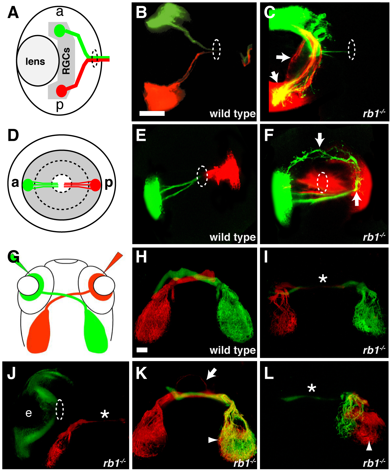 Intraretinal and midline RGC axon pathfinding errors in <i>rb1<sup>te226a</sup></i> mutants.