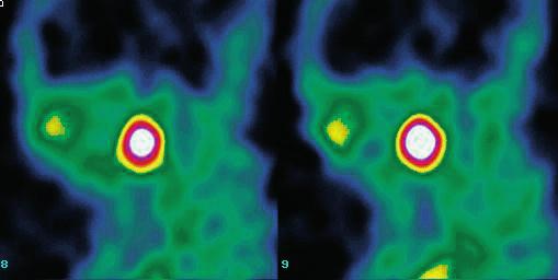 Obr. 2. SPECT hlavy a krku, sagitální řezy. Akumulace <sup>99m</sup>Tc-pertechnetátu sodného v ektopické tkáni štítné žlázy v kořenu jazyka. Fig. 2. Head and neck SPECT, sagittal slices. SPECT shows <sup>99m</sup>Tc-pertechnetate sodium uptake in the ectopic thyroid tissue in the tongue and no uptake in the anterior neck region.