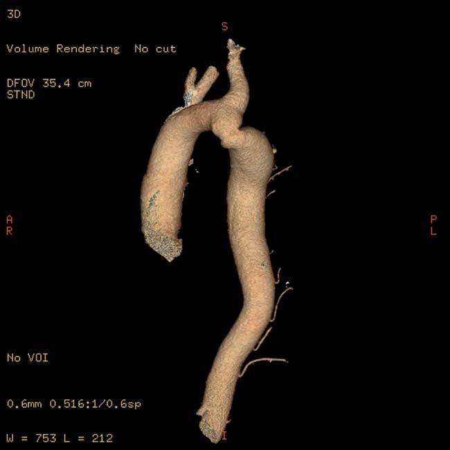 Koarktace aorty diagnostikovaná u 58letého muže s rezistentní hypertenzí (zjištěnou od 18 let a léčenou od 28 let). Převzato z [10].