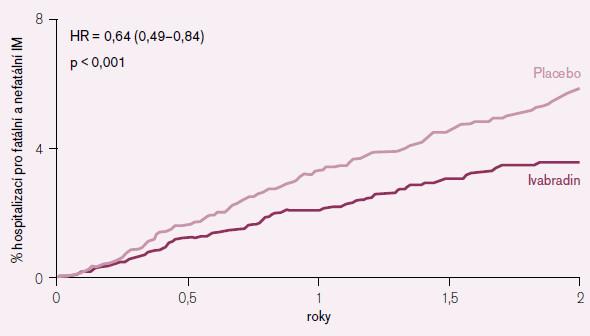 Vliv podávání ivabradinu na potřebu hospitalizace pro fatální i nefatální akutní infarkt myokardu v subpopulaci nemocných se vstupní SF > 70/min.