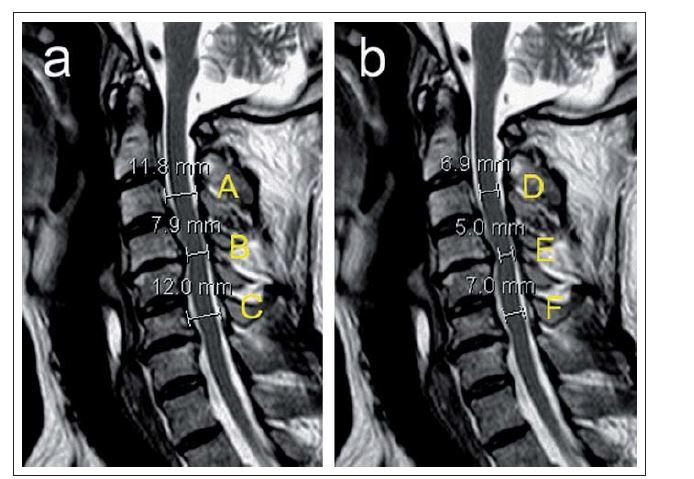 a,b) Ukázka různých měření popisujících míru stenózy páteřního kanálu a míšní komprese u pacienta se sekundární spinální stenózou s maximem v etáži C4/5 znázorněné na sagitálních T2 vážených skenech MR zobrazení (a,b).