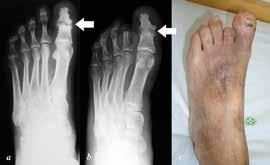 a: předoperační dorzoplantární RTG nohy s patrnou destrukcí IP kloubu palce při purulentní artritidě (šipka), dále gangréna distálního článku II. prstce; b: pooperační dorzoplantární RTG nohy, stav po amputaci v základním článku II. prstce a artrodéze IP kloubu palce, artrodéza zhojená (šipka); c: klinický snímek po operaci, zachování alespoň části II. prstce je nezbytné k zabránění valgizace palce